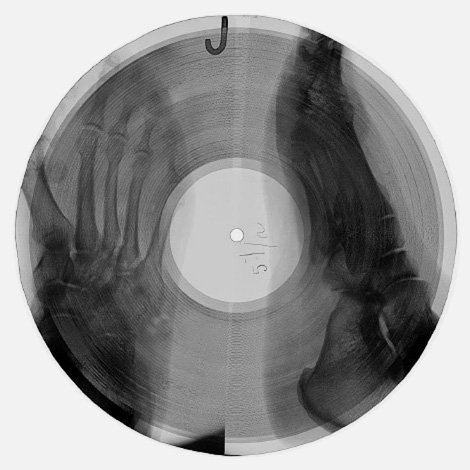 X-ray records